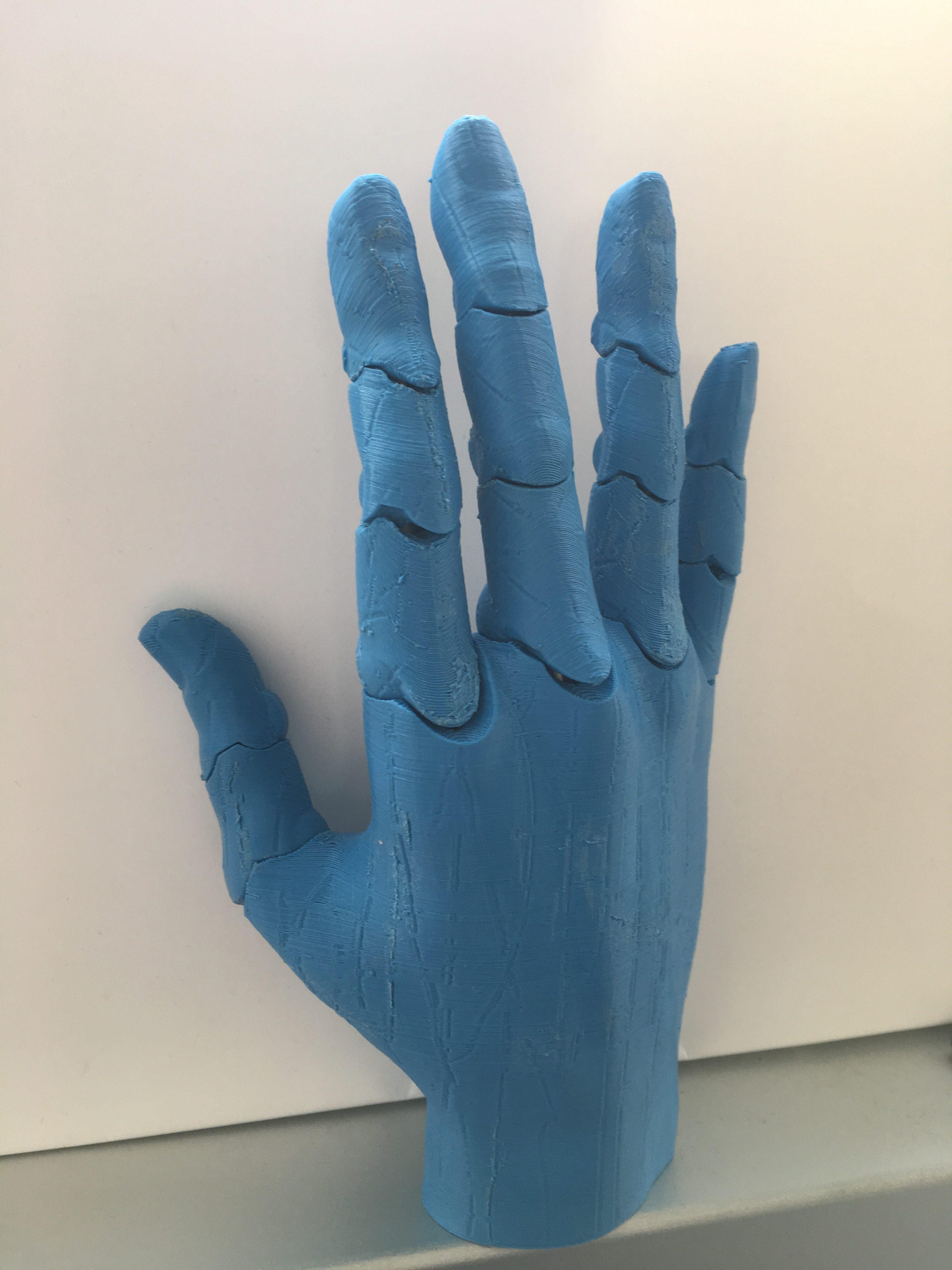 Dorso della mano